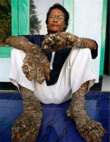 Dede-koswara-l-homme-arbre_